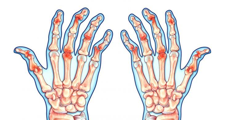 Изменение в суставах при артрите