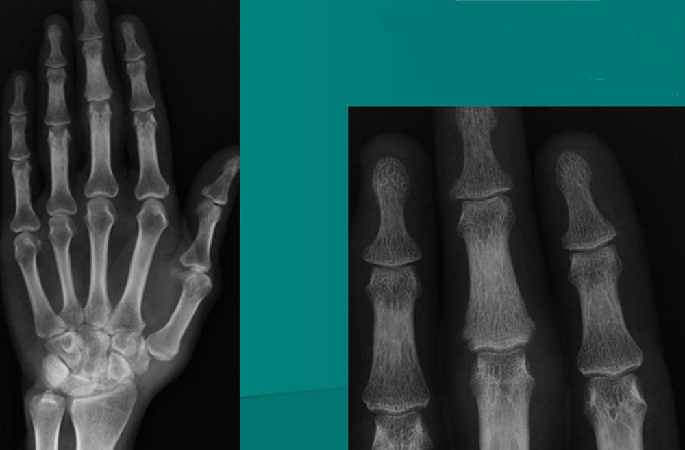 Псориатический артрит при рентгене