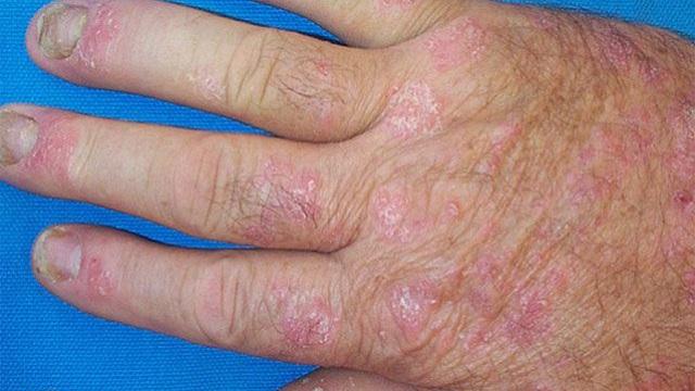 Шелушение рук при патологии