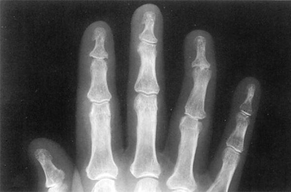 Рентгенологическое исследование сустава