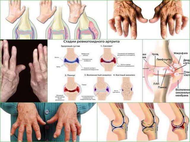 Инвалидность при артрите ревматоидного и псориатического вида