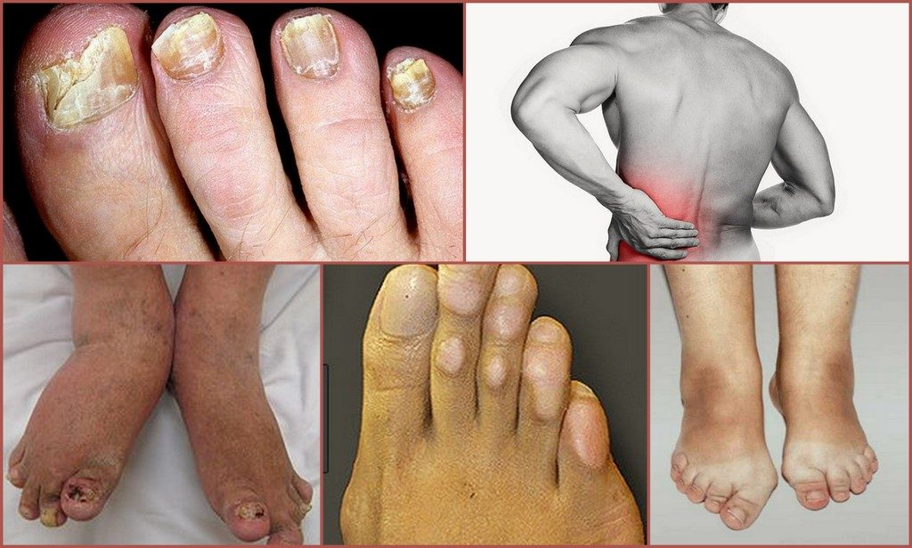 Класификация заболевания