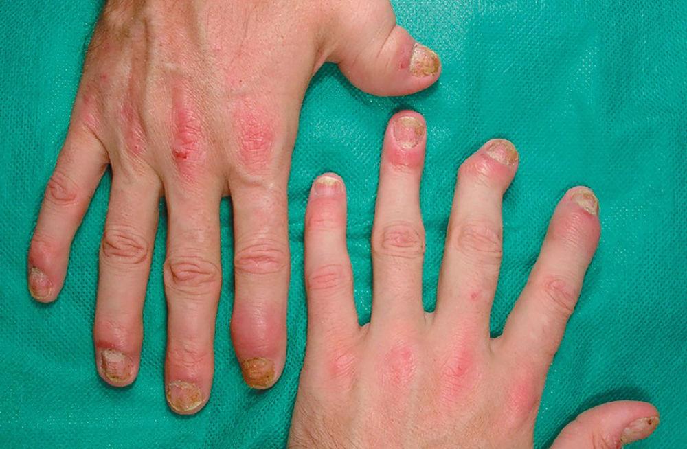 Признак псориатического артрита