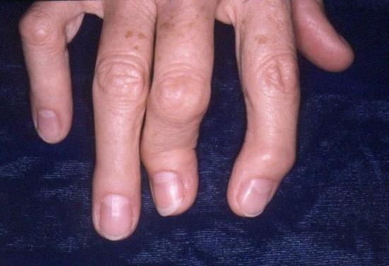 псориатическая артропатия лечение народными средствами