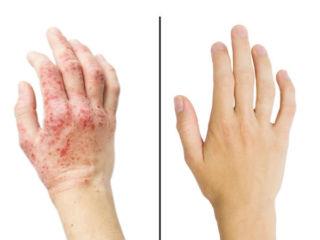 Псориаз до и после применения мази