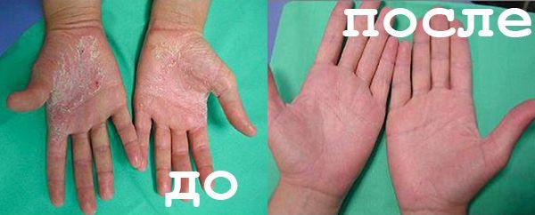 На фото: лечение псориаза народными методами