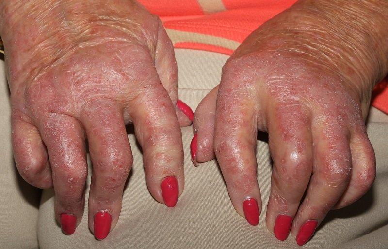 Руки с псориатическим артритом
