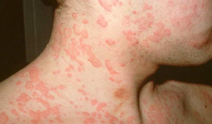 Псориаз на лице: симптомы, лечение и фото