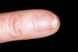 Что такое онихолизис: причины и лечение заболевания