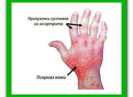 Лечение подагрического артрита