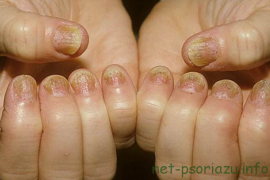 Как лечить псориаз ногтей — особенности заболевания
