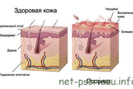 Особенности и лечение обратного псориаза