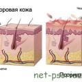 История болезни псориаз