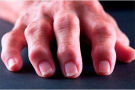 Лечение артроза на пальцах рук: лучшие методы