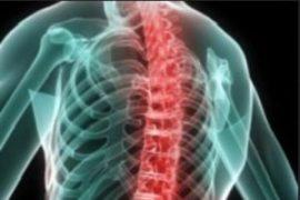 Что такое аксиальный спондилит: лечение
