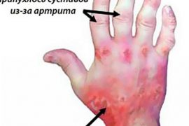 Псориатический полиартрит симптомы и лечение