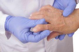 Инвалидность при псориатическом артрите
