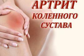 Артрит коленного сустава: причины, симптомы и лечение