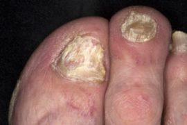 Псориаз ногтей или псориатическая ониходистрофия