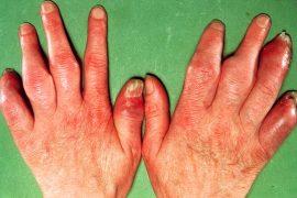 Псориатический артрит – загадочное и непредсказуемое заболевание. Основные методы диагностики и лечения