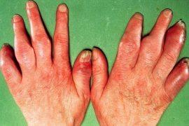 Дают ли инвалидность при псориатическом артрите?