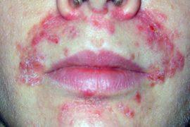 Если на теле или лице появились красные пятна на коже, похожие на лишай, но они не чешутся, как их отличить?