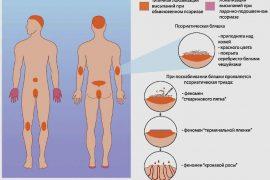 Что заболезнь псориаз, как она проявляется икак лечится