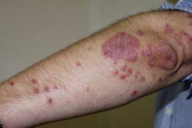 Капельный псориаз: симптомы, причины и методы устранения