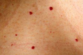 Красные мелкие точки на теле: что это такое и как лечить?