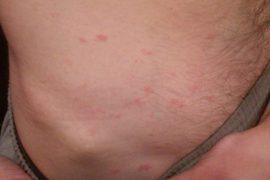 Красные пятна на теле: виды, причины, лечение