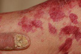 Парапсориаз: симптомы и лечение