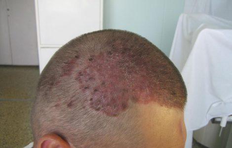 Мазь от псориаза на голове