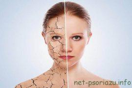 Псориаз (фото): Симптомы и разновидности псориаза