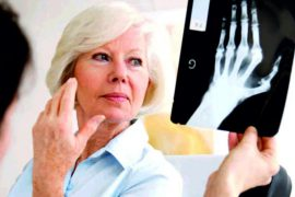 Эффективное лечение ревматоидного артрита