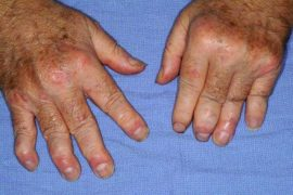 Что такое псориатический артрит: общее описание болезни, причины появления, прогноз и методы лечения