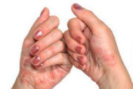 Лечение полиартрита суставов