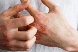 Иммунитет и псориаз, особенности аутоиммунного заболевания