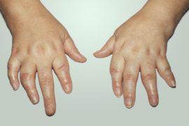 Псориатический артрит: причины, симптомы, методы диагностики и лечение