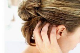 Что делать если на голове псориаз