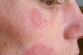 Псориаз на лице: симптомы, причины, методы лечения