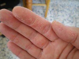 Псориаз на руках: симптомы и лечение