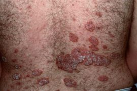 Что такое псориаз: причины, стадии, лечение