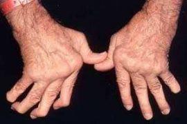 Температура при артрите — может ли быть и почему