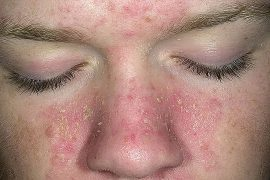 Красные шелушащиеся пятна на лице: причины, разновидности, лечение