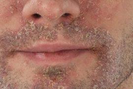 Себорейный дерматит – фото