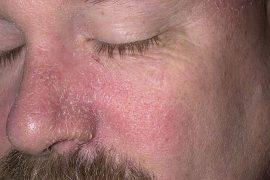 Себорейный псориаз: особенности заболевания и способы лечения