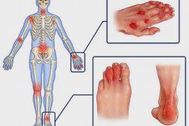 Клинические рекомендации при ревматоидном артрите