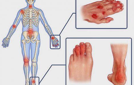 Синдром Шегрена: симптомы, диагностика, лечение