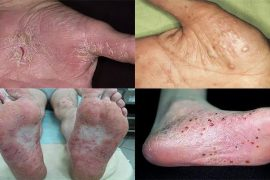 Виды ладонно-подошвенного псориаза и способы лечения