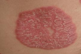 Как вылечить псориаз навсегда? Причины псориаза и его лечение.